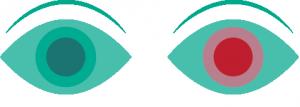 medical care system ögonskölj spolvätska första hjälpen kemi olyckor olycka kemikalier kontakta oss